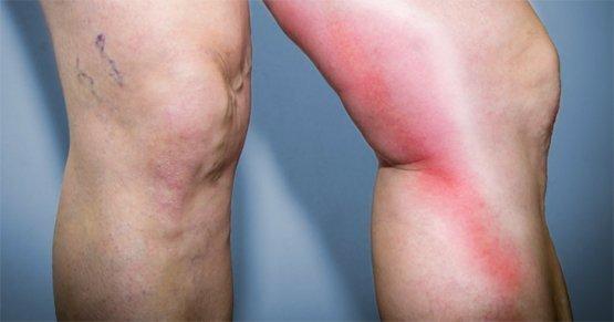 Venenentzündung: Wie entsteht eine Thrombophlebitis ?